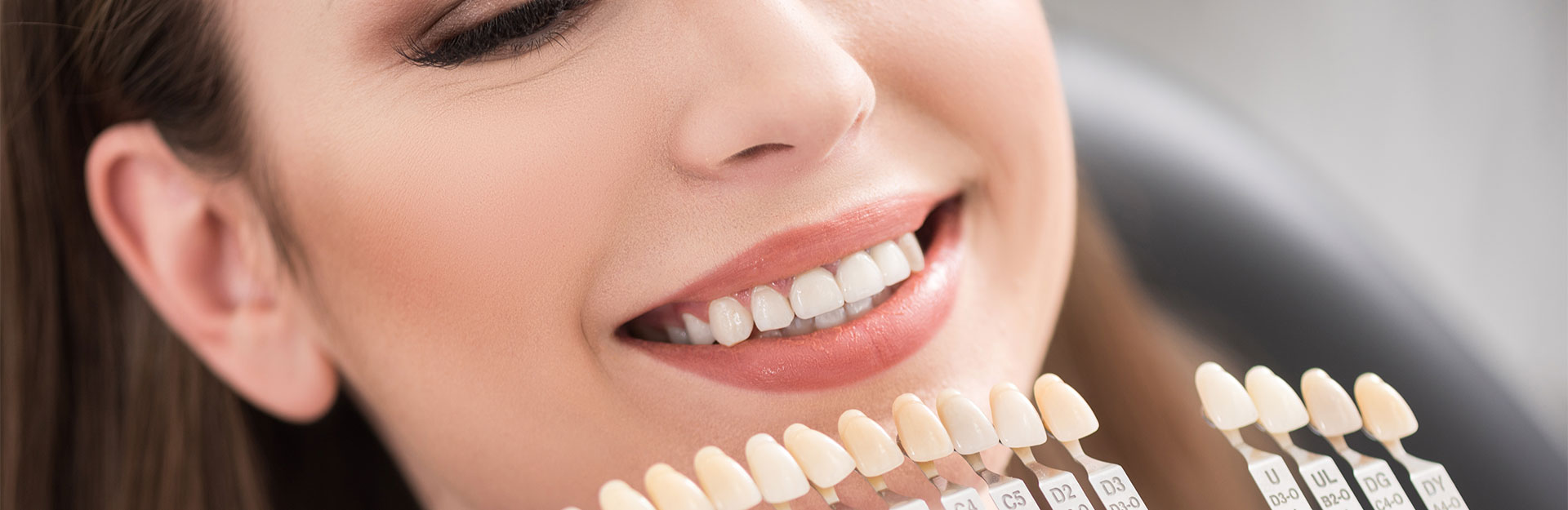 Replacing Your Dental Fillings