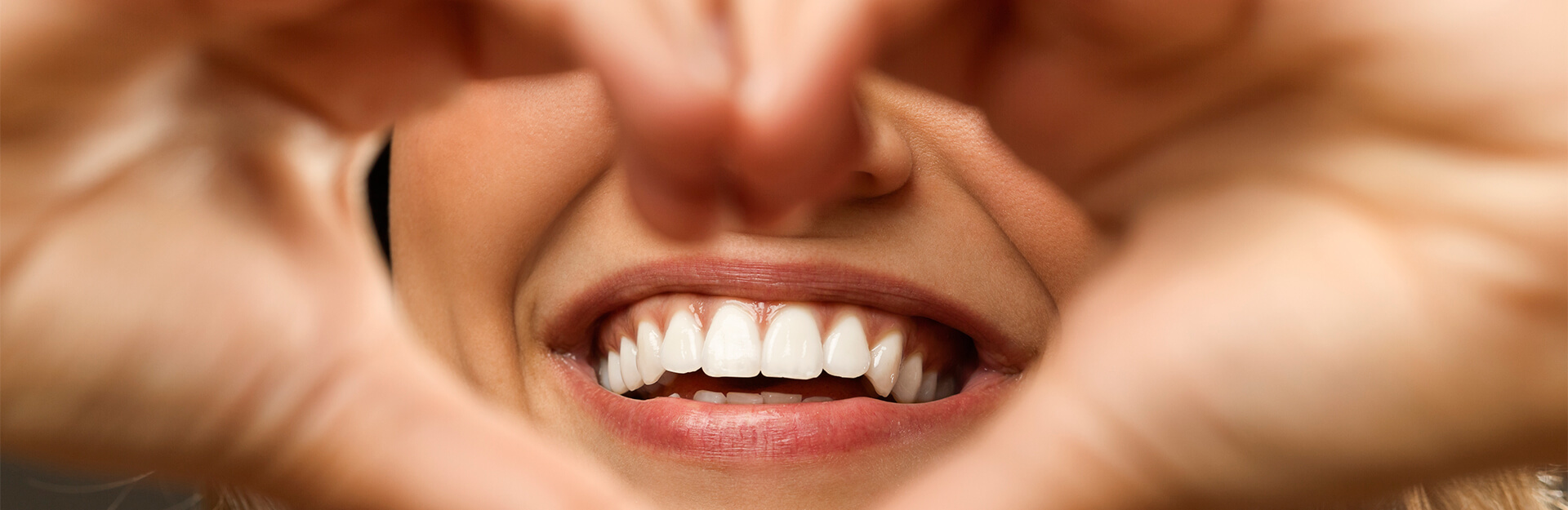 Want Whiter Teeth? You Have Options
