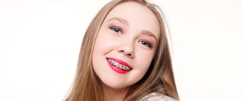 Invisalign Braces- Features, Pros, and Cons